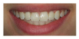 After-Implant2.jpg