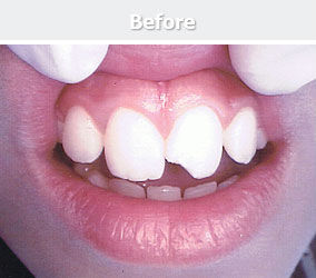 chipped-off-tooth-before.jpg