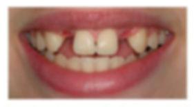 Before-Implant.jpg