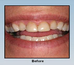 before-veneers-whitening.jpg