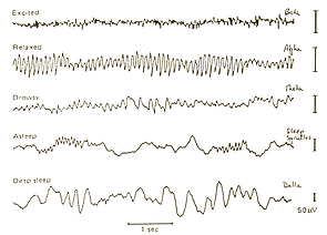 brain waves sleep chart_edited.png