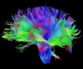 MRI-scan.jpg