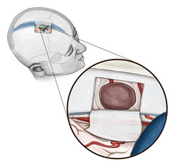 Transfalcine Craniotomy