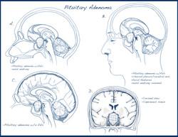 Pituitary Adenoma Sketch