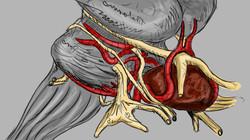 Animatic Pituitary Adenoma