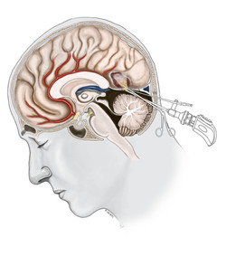 Sub-Occipital Transtentorial