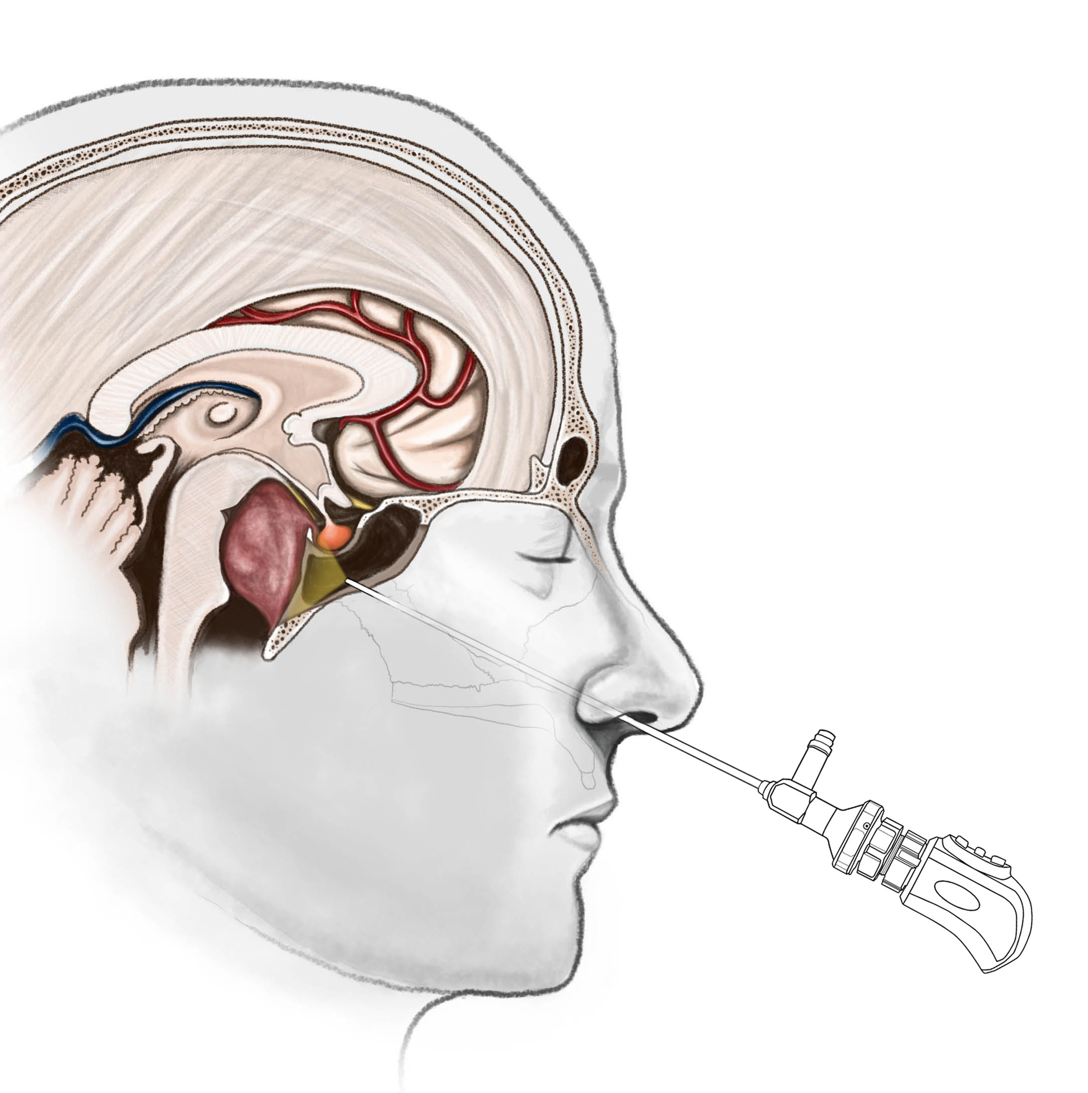 Endoscopic Endonasal to Clivus