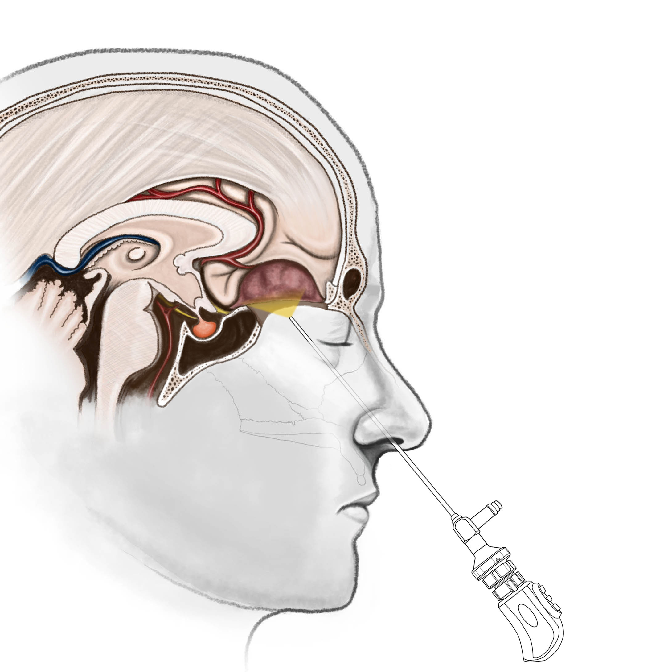 Endoscopic Endonasal Extended