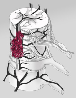 Spinal Cord AVM