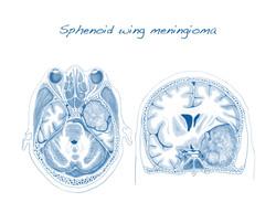 Sphenoid Wing Meningioma Sketch
