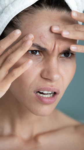 The Stressed Skin Series: Breakouts and Why We Have Them?
