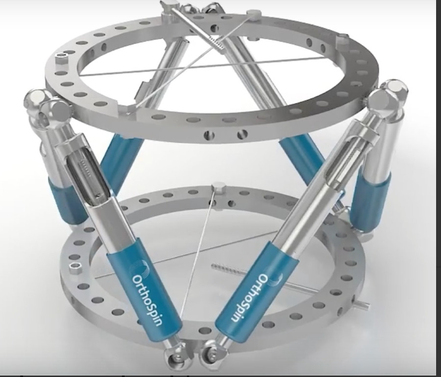 OrthoSpin Completes $3 Million Raise for Orthopedic Robotic External Fixation System