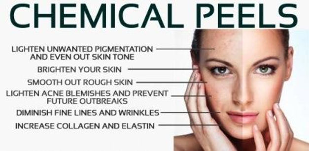 Chemical-Peels-Madison-WI.jpg