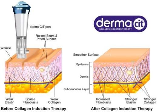 DermaCIT Collagen Induction Therapy Pen - Illustartion