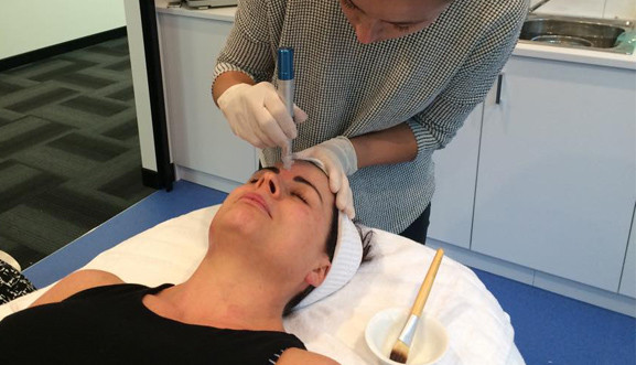 Person getting Collagen Induction Therapy