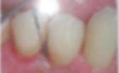 qc-gum-disease-1.png