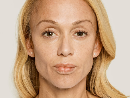 Discover Beautiful Results with Sculptra Aesthetic