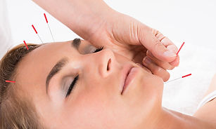facial-acupuncture.jpg