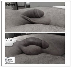 Penis Enlargment Before After Pictures.j