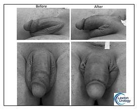 Phallocenter Penis Enlargement Before Af