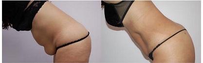 Lawton Urology Body Tite Abdomen_edited.