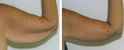 Lawton Urology Body Tite Arms_edited.jpg