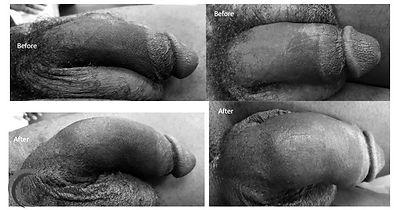 PhalloCenter Penis Enlargement 2.10.19_e