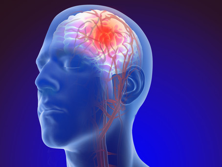 Prediction of Unruptured Intracranial Aneurysm Evolution: The UCAN Project