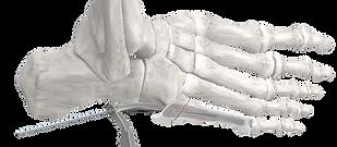 Precision® Jones Fracture Screw System
