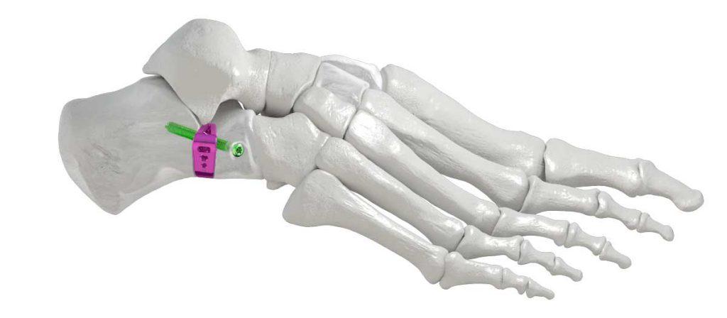 Evans_Wedge_Bone-1024x448