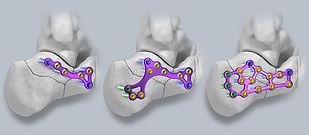 Gorilla® Calc Fracture Plating System