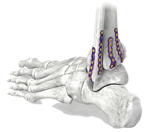 Gorilla® Ankle Fracture Plating System
