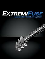 Sistema de Fijación ExtremiFuse para HammerToe