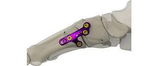 Gorilla® Lapidus Arthrodesis System