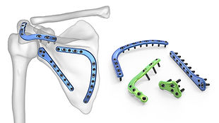 Sistema de Placas para Escápulas