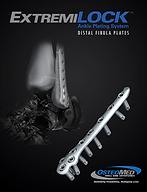 Sistemas de Placas de Tobillo para Peroné Distal ExtremiLock