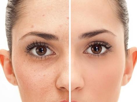 10 Dicas para o tratamento de Acne