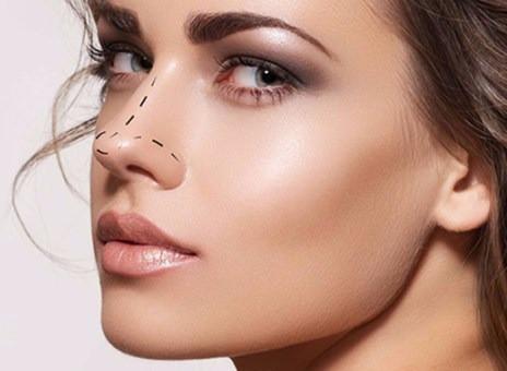Remodelação Nasal vs Rinoplastia