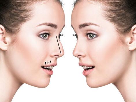 Remodelação Nasal Sem Cirurgia