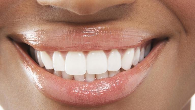 Veneers in Bangor ME, Maine Family Dental Practice