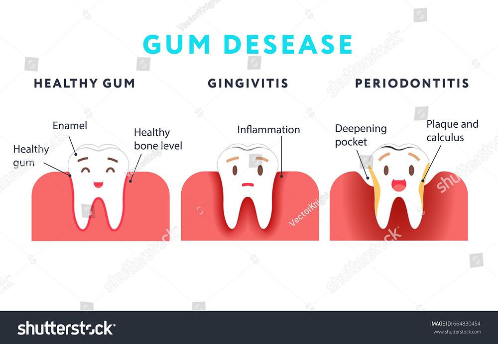 Image result for gum disease cartoon
