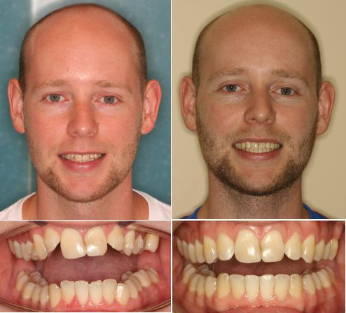 Image result for before and after photos of invisalign patients