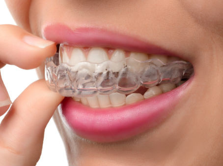 Invisalign Success Stories: How Long It Takes and What You Can Expect