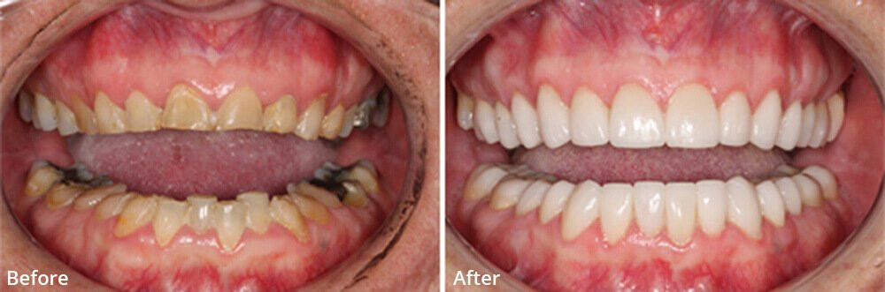 Image result for before and after dental pictures