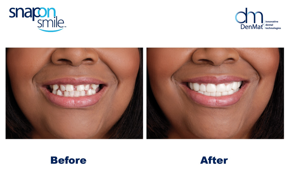Image result for before and after snap on smile