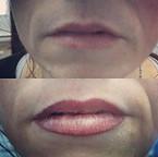 Contour des lèvres !