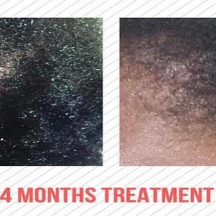 Ottawa Hair Loss Clinic and Wellness