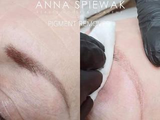 New Treatment! Pigment Remover