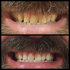 Graeme teeth.jpg
