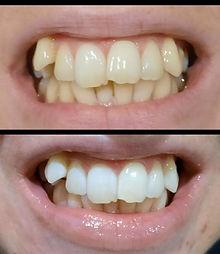 teeth 1.jpg